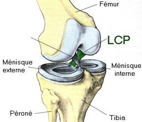 ligament_croisé_1